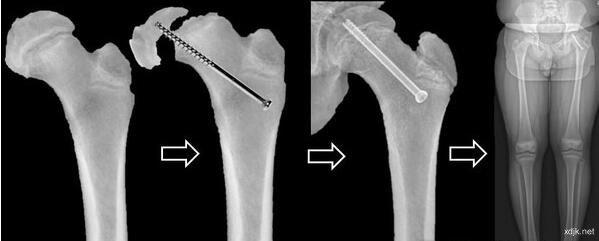 臀部跌撞左膝却开始疼痛 小心儿童股骨头骨骺滑脱症上身