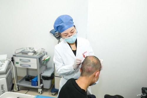 """西安国际医学中心整形医院陈娟主任:佑护少年""""头顶大事"""""""