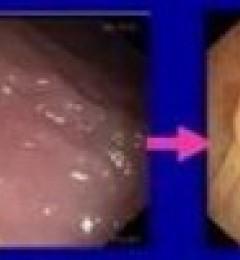 结直肠癌的高危人群预防和筛查指南广东民安医院主任提醒这些情况需注意