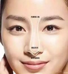 鼻子整形缩小鼻翼哪种手术方法甄永环医生南加整形