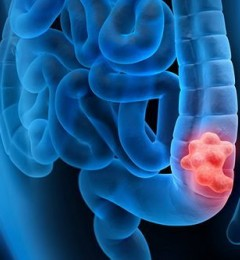 大肠癌可预防 早期筛查是防治的关键
