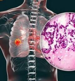 不吸烟也会患肺癌?研究发现红萝卜与膳食纤维能降低肺癌风险