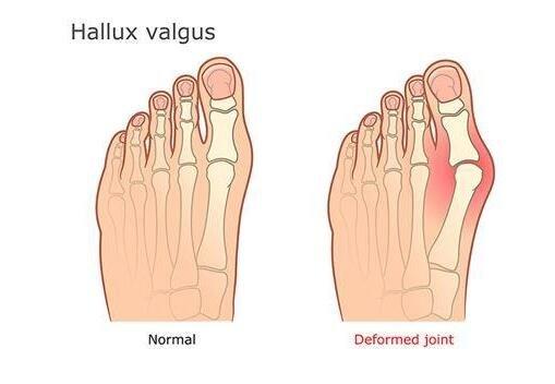 大脚趾外翻引起囊肿 这些方法能有效预防