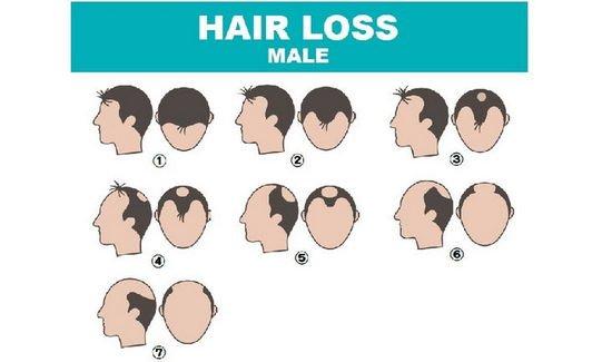 脱发、秃发莫担心 专家:这些问题有得救!