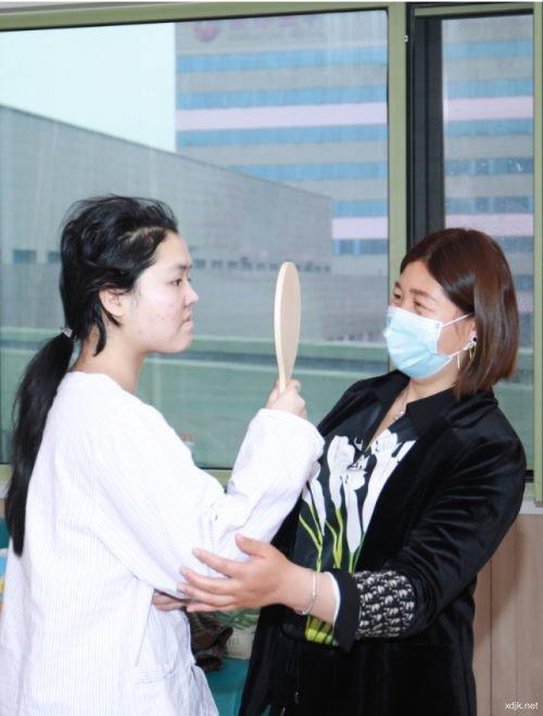 西安国际医学中心整形医院美容外科主任师俊莉 成功修复幼时坠楼鼻畸形患者