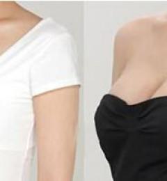 济南医美哪里好?假体形状大小是否真的影响隆胸效果?