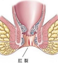 肛裂有什么危害?四川肛肠医院专业诊治肛肠疾病
