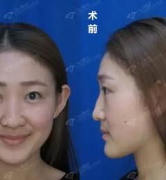 沈阳杏林整形医院:隆鼻手术一般多少钱
