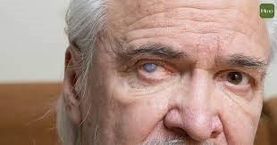 老年人的福音 用药物疗法代替手术治疗白内障取得大突破