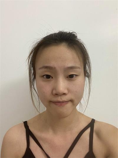 徐州医科汇美綦孝�以撼た破眨核�眼皮术后的恢复方法
