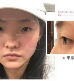 云南铜雀台刘哲延喜善美眼 专业的医生术前精心设计