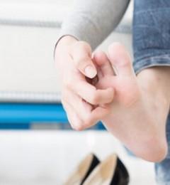 夏天双脚经常痒得受不了 水泡型足癣常被误诊汗疱疹