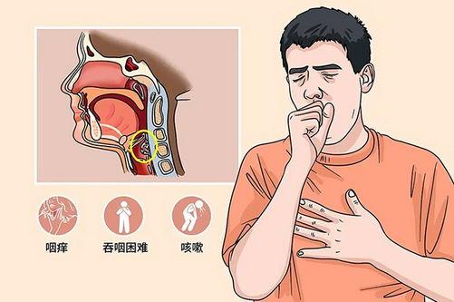 成都民生耳鼻喉专科医院治喉癌怎么样 国家二级专科医院靠谱