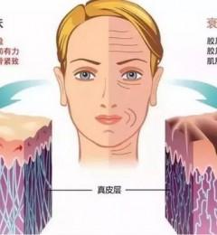 遇青春:抗衰要趁早不手术不线雕提升松垂脸