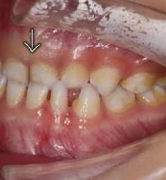 正畸专家吴嵩:关于等到孩子12岁了采取矫正牙齿的误区
