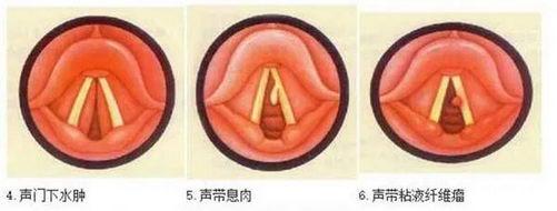 成都民生耳鼻喉医院梁传余提醒 声音嘶哑、吞咽困难可能是喉癌