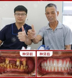 广州种植牙中心广东省爱牙工程第18季指定广大口腔德国精准种植示范中心执种